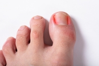 Why Do Ingrown Toenails Form?