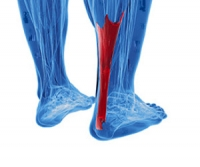 Achilles Tendon Injuries Can Cause Severe Pain