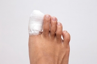 How Is A Broken Toe Treated?